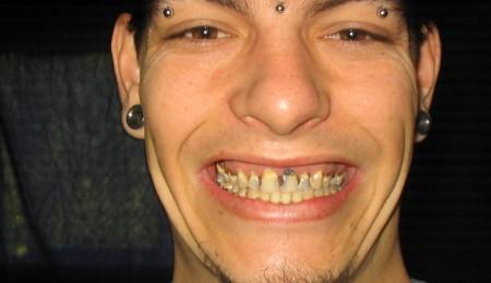 Brush Your Fucking Teeth, Kids